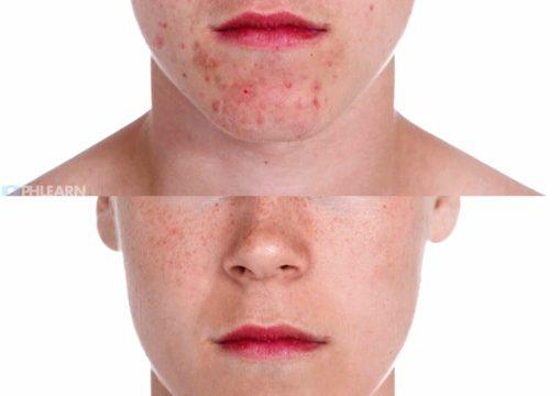 remove-acne-photoshop-05-509x570