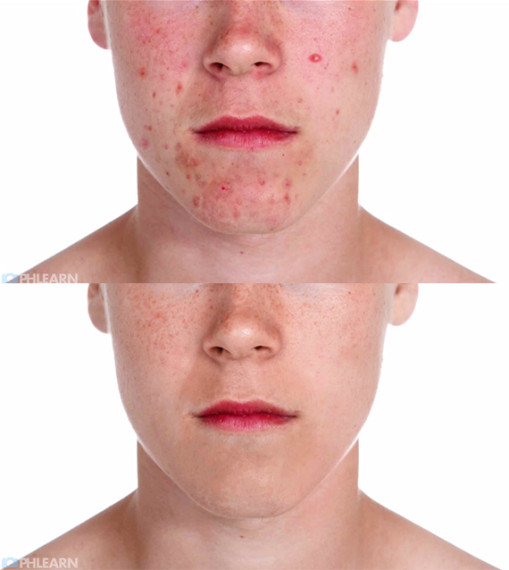 remove-acne-photoshop-05-509x570